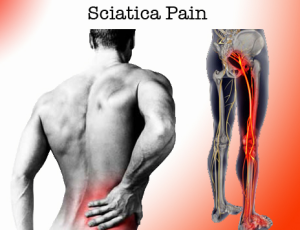 Treating Sciatica with Acupuncture | Rivertown Acupuncture