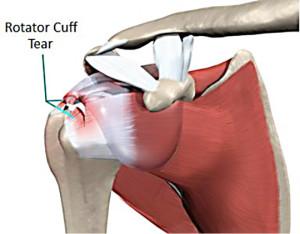 torn-rotator-cuff