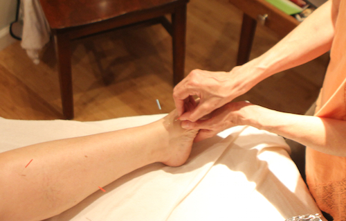 Acupuncture Services | Cupping, Chinese Medicine, Tuina